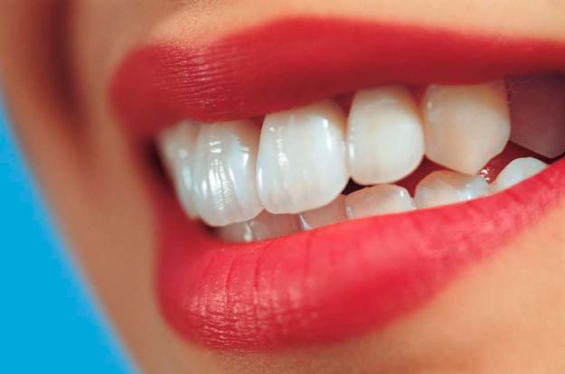 5 Ways To Achieve That Perfect Dental Smile